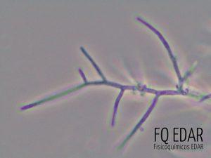 Bacterias filamentosas en el fango activo.